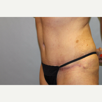 35-44 year old woman treated with Tummy Tuck after 3529142