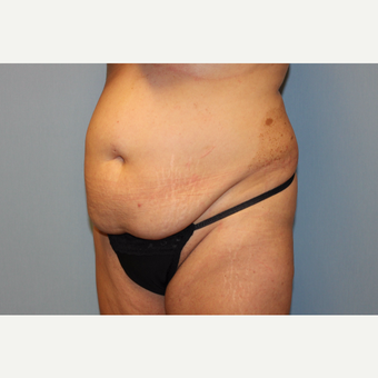 35-44 year old woman treated with Tummy Tuck before 3529142