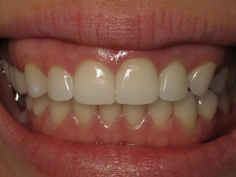 Porcelain Crowns Before & After Photo after 996258