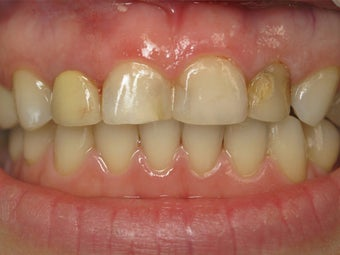 Porcelain Crowns Before & After Photo before 996258