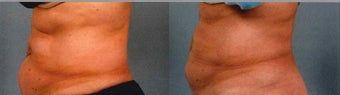 CoolSculpting Results before 1123920