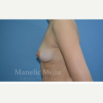 25-34 year old woman treated with Breast Augmentation before 3647376