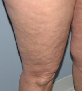 52 year old female cellulite treatment 1147885
