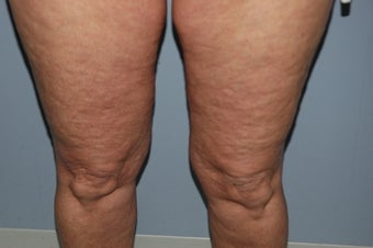 52 year old female cellulite treatment before 1147885