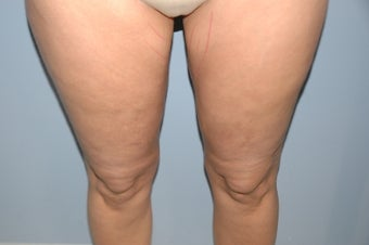 52 year old female cellulite treatment after 1147885