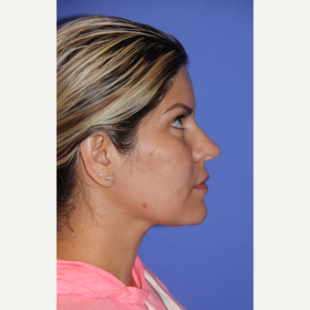 35-44 year old woman treated with Revision Rhinoplasty before 3401242
