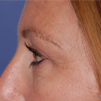 35-44 year old woman treated with Eyelid Surgery after 3624402