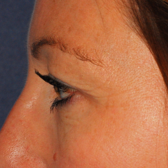 35-44 year old woman treated with Eyelid Surgery before 3624402