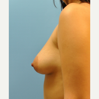 350 cc saline filled to 400 cc, 21 year old who had a breast augmentation before 3489744