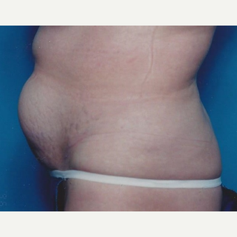 35-44 year old woman treated with Tummy Tuck before 3629315