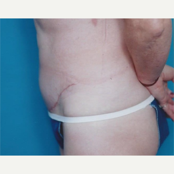 35-44 year old woman treated with Tummy Tuck after 3629315