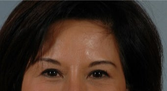 45-54 year old woman treated with Asian Eyelid Surgery after 3615797