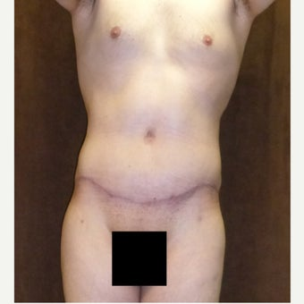 33 year old man treated with Male Tummy Tuck after 1813599