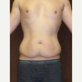 33 year old man treated with Male Tummy Tuck before 1813599