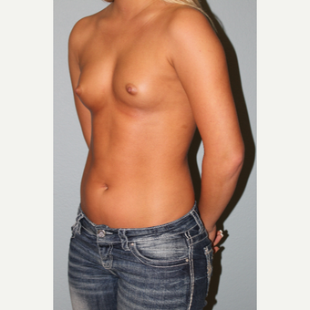 18-24 year old woman treated with Breast Augmentation before 3548988