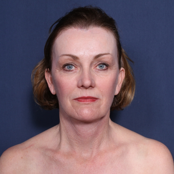 55-64 year old woman treated with Neck Lift (view 1 of 2) after 3179920