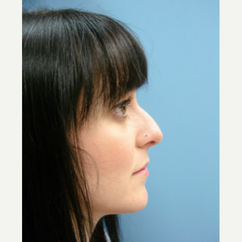 25-34 year old woman treated with Rhinoplasty before 3482550