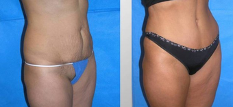 Tummy Tuck (Abdominoplasty) before 258037