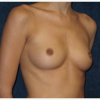 18-24 year old woman treated with Breast Augmentation before 2208577