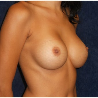 18-24 year old woman treated with Breast Augmentation after 2208577