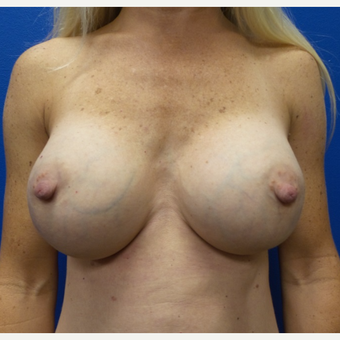 35-44 year old woman treated with Breast Augmentation after 3775675