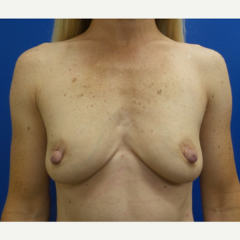 35-44 year old woman treated with Breast Augmentation before 3775675