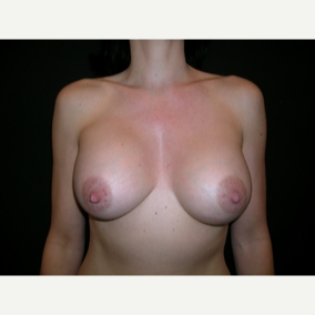 42 year old woman treated with Breast Augmentation after 3840045