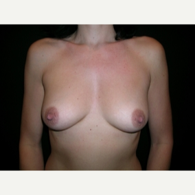 42 year old woman treated with Breast Augmentation before 3840045