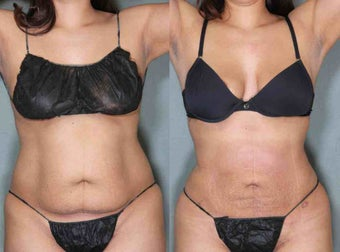 36 Year Old Female Treated Upper and Lower Abs Liposuction