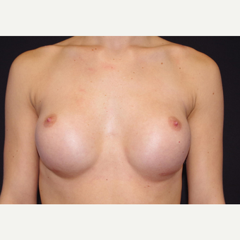 18-24 year old woman treated with Breast Implants before 3440880