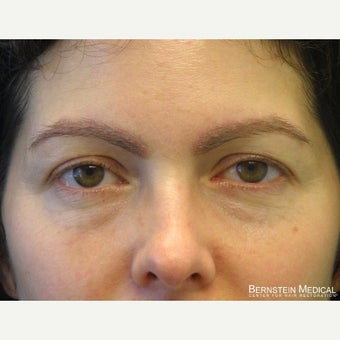 35-44 year old woman treated with Eyebrow Transplant after 1958743