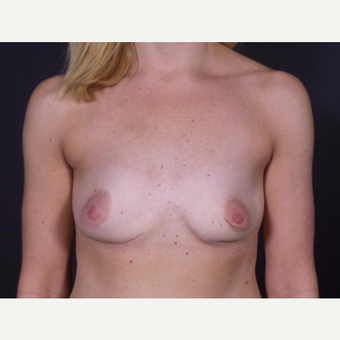 35-44 year old woman treated with Breast Implant Removal after 3347073