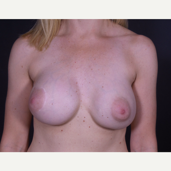 35-44 year old woman treated with Breast Implant Removal before 3347073