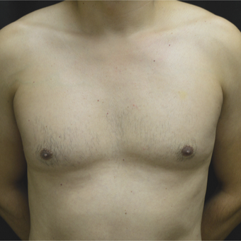 35-44 year old man treated with Male Breast Reduction before 3181592