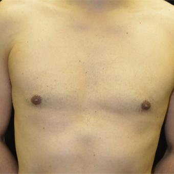 35-44 year old man treated with Male Breast Reduction after 3181592