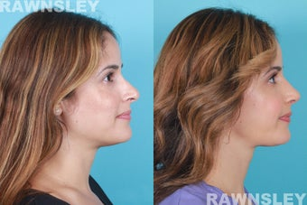 Revision Rhinoplasty after 985222