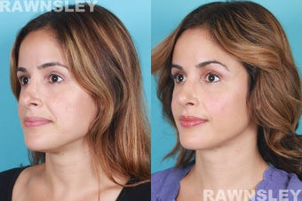 Revision Rhinoplasty before 985222