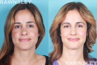 Revision Rhinoplasty 985222