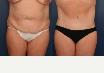 35-44 year old woman treated with Tummy Tuck before 3699160