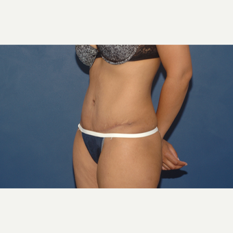 32 year old woman treated with Tummy Tuck after 3283087