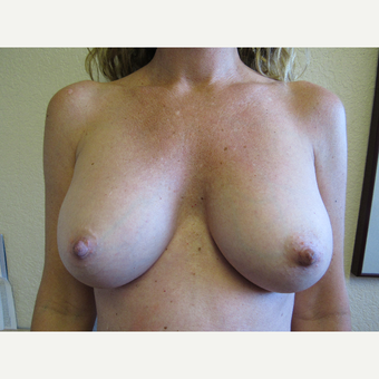 25-34 year old woman treated with Mentor Breast Implants after 3407167