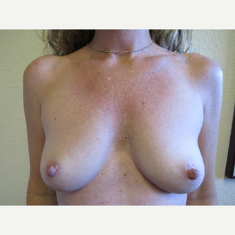 25-34 year old woman treated with Mentor Breast Implants before 3407167