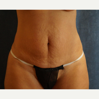 45-54 year old woman treated with Tummy Tuck before 3281518