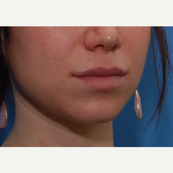 25-34 year old woman treated with Lip Augmentation after 3032095