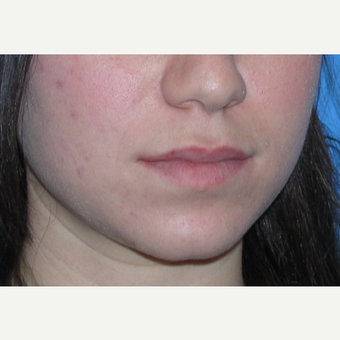 25-34 year old woman treated with Lip Augmentation before 3032095