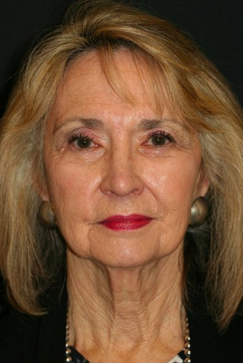 65-74 year old woman treated with Quicklift Plus type Facelift before 1679563
