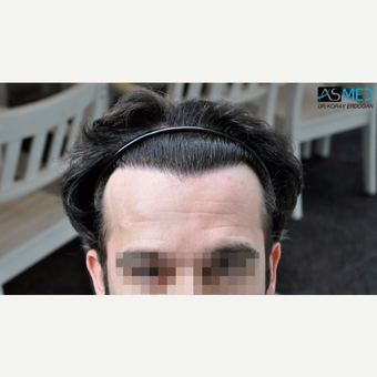 25-34 year old man treated with 3850 Grafts FUE Hair Transplant after 3091509