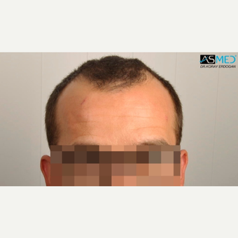 25-34 year old man treated with 3850 Grafts FUE Hair Transplant before 3091509
