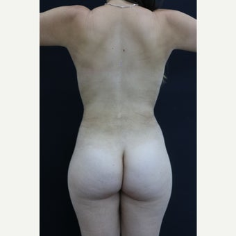 25-34 year old woman treated with Liposculpture after 3344942