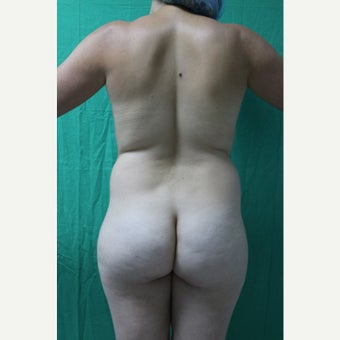 25-34 year old woman treated with Liposculpture before 3344942